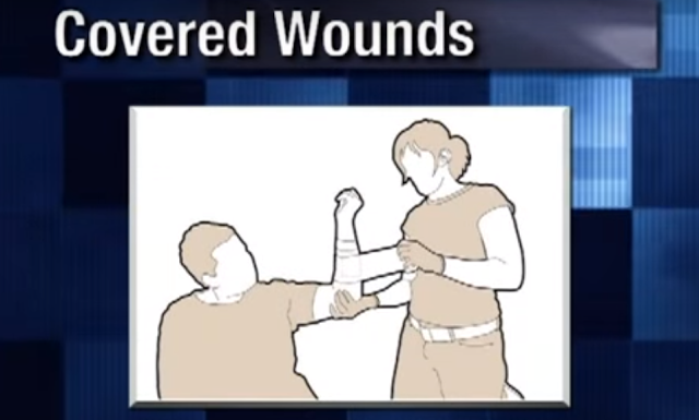 covered wound