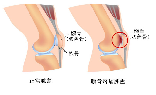 臏骨疼痛症候群 跑者膝