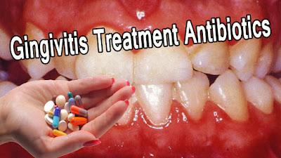 Gingivitis Treatment Antibiotics