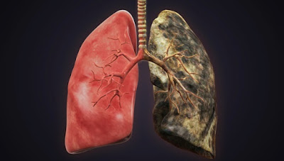 Τι κάνει το τσιγάρο στους πνεύμονες: Το βίντεο που σόκαρε τους καπνιστές παγκοσμίως (Εικόνες, Βίντεο)