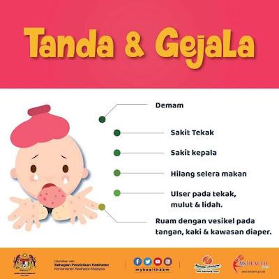 Penyakit Tangan, Kaki Dan Mulut, hand, foot and mouth desease, HFMD, Kenali Penyakit Tangan Kaki Dan Mulut Serta Nasihat Kepada Ibu Bapa, cara mencegah penyakit kaki tangan dan mulut, langkah untuk mencegah HFMD, punca HFMD, Tanda dan gejala HFMD, Rawatan HFMD, Rawatan penyakit tangan kaki dan mulut, tanda dan gejala penyakit tangan kaki dan mulut, komplikasi HFMD, komplikasi penyakit tangan kaki dan mulut, nasihat kepada ibu bapa dan penjaga berhubung HFMD
