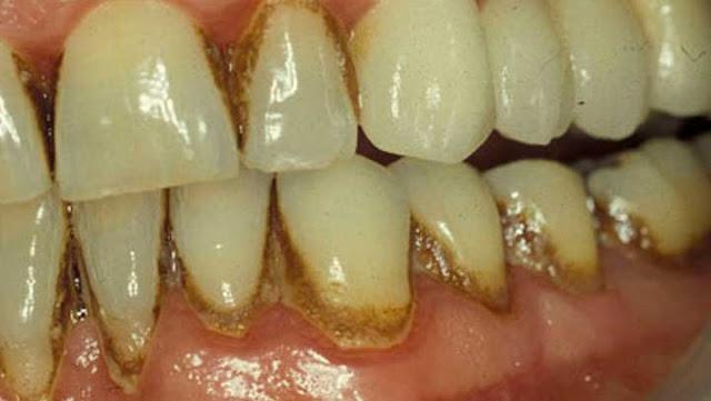 Cuando Veas Este Método Te Enojaras Con Tu Dentista Por Ocultarte Como Sacar El Sarro En Dos Días!