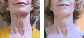 Scrawny neck