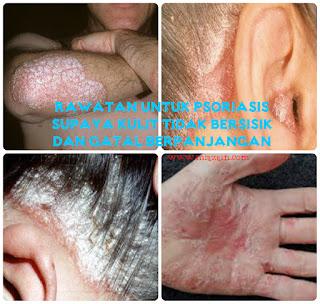 Rawatan untuk Psoriasis