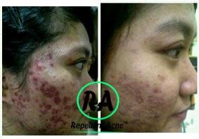 testimoni-obat-jerawat-paling-ampuh-dalam-semalam-repellent-acne-RA