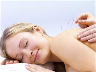 Chữa đau lưng bằng phương pháp châm cứu