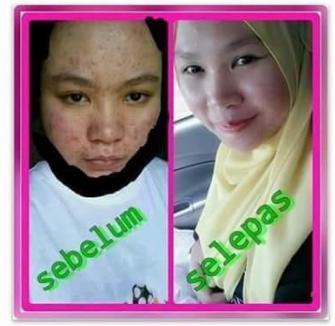 nurraysa beauty skincare bahaya