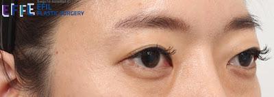 efil,bulging eyes