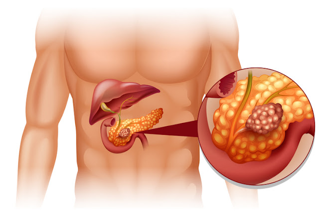 Top 7 Foods How To Prevent Pancreatic Cancer