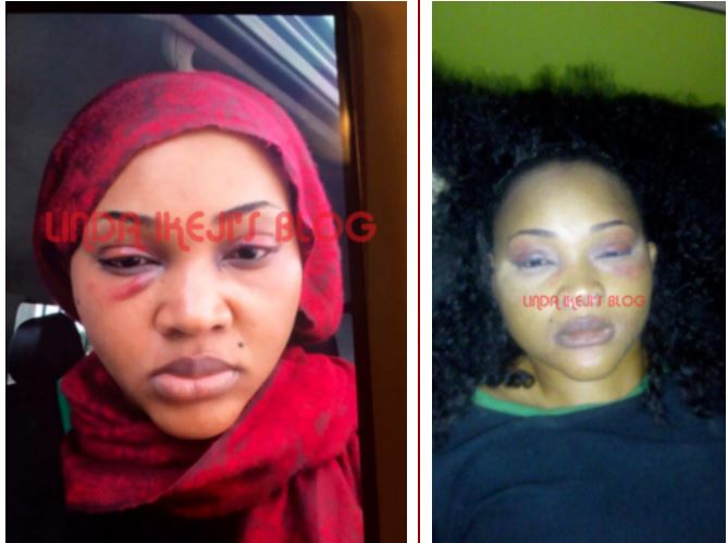 Domestic violence: Mercy Aigbe's battered face causes stir