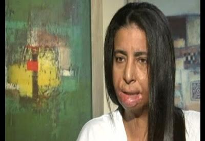 بالفيديو.. شاهد ماذا قالت الفتاة التي حرقها رامز اثناء تصوير الحلقة