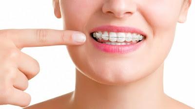 Niềng răng hô diễn ra như thế nào tại nha khoa