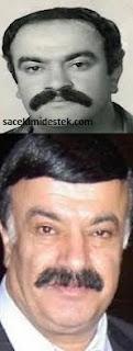 protez saç kullanan ünlülerin öncesi sonrası