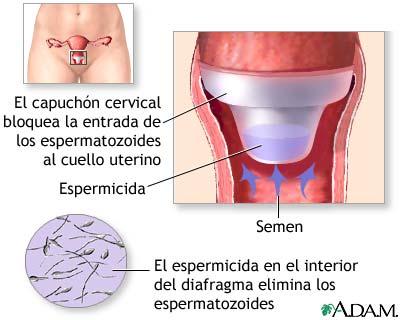 utilizar el diafragma como metodo anticonceptivo