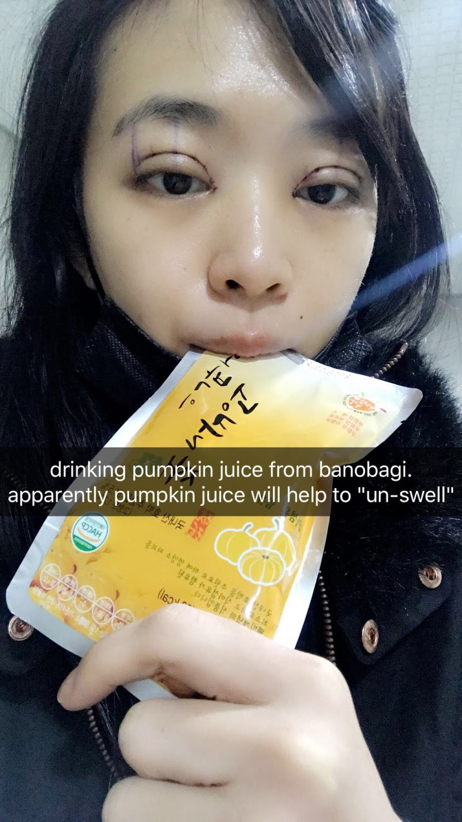 I Was Recommended To Drink 23 Packets Of Pumpkin Juice Everyday As It Will  Help To Reduce The Swelling So I Drank 1 Every Morning And Brought 2  Packets