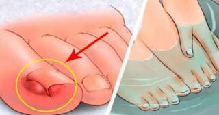 6 Remèdes maison pour soulager les ongles incarnés