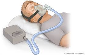 Sleep apnea therapy treatment consideration