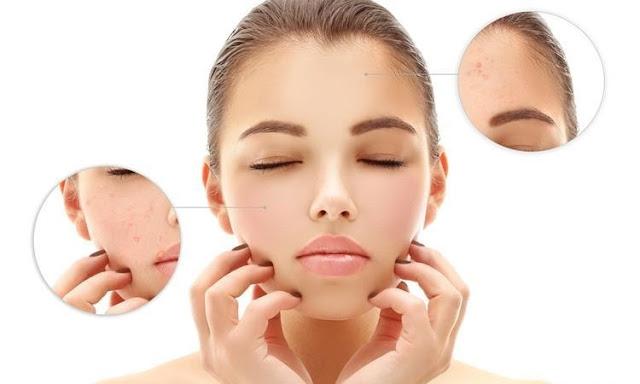 Các nguyên nhân gây mụn và cách chăm sóc da mụn hiệu quả