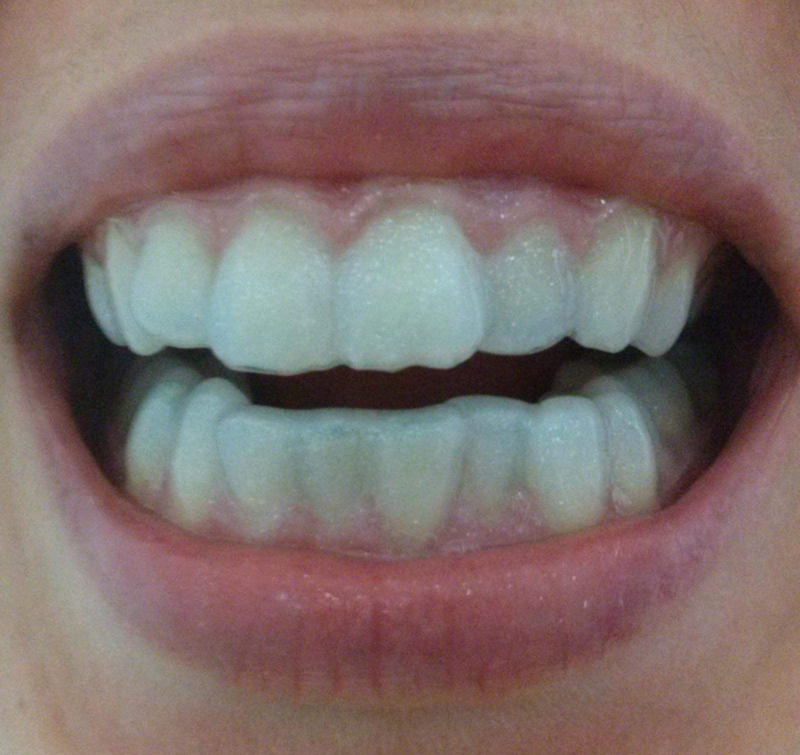E Tudo Vaidade Dentes Mais Brancos Regenerate Enamel Science