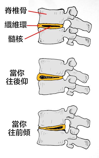 好痛痛 脊椎 椎間盤