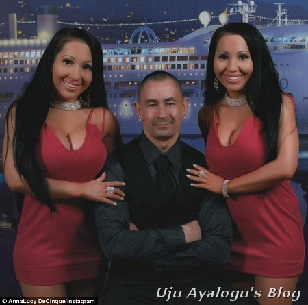 World's Most Identical Twins Sisters Who Share a Boyfriend Now Set To Marry Him (Photos)