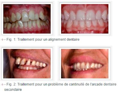 Intérets d'un traitement orthodontique