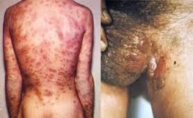 Penyakit Sifilis Atau Raja Singa