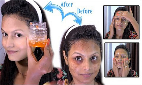5 Nights Open Challenge – All Dark/Black Spots Will Disappear From Your Face