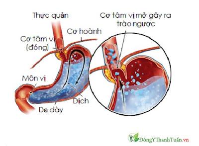 Bệnh lý trào ngược dạ dày thực quản