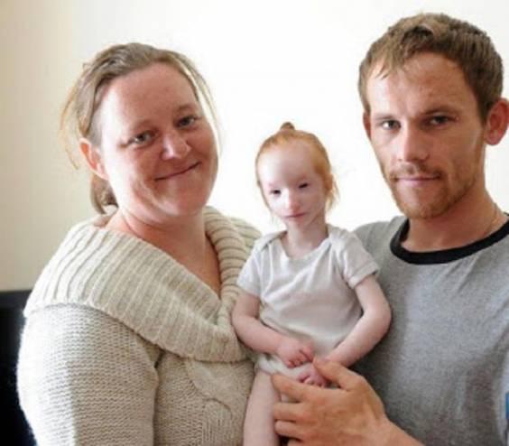 الطفله العفريت يخشى الجميع ايذائها بدون قصد وتوقع الاطباء موتها! أصغر فتاة على وجه الأرض!