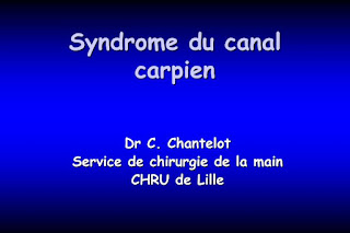 Syndrome du canal carpien.pdf
