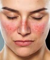 Lupus, la enfermedad grave que muchos ignoran