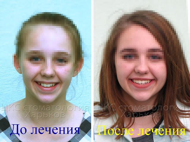 ретинированный зуб до и после лечения брекетами
