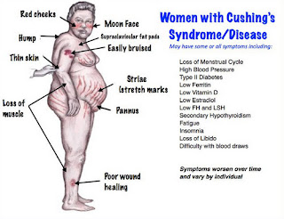 A typical characteristic of a woman with a Cushing syndrome