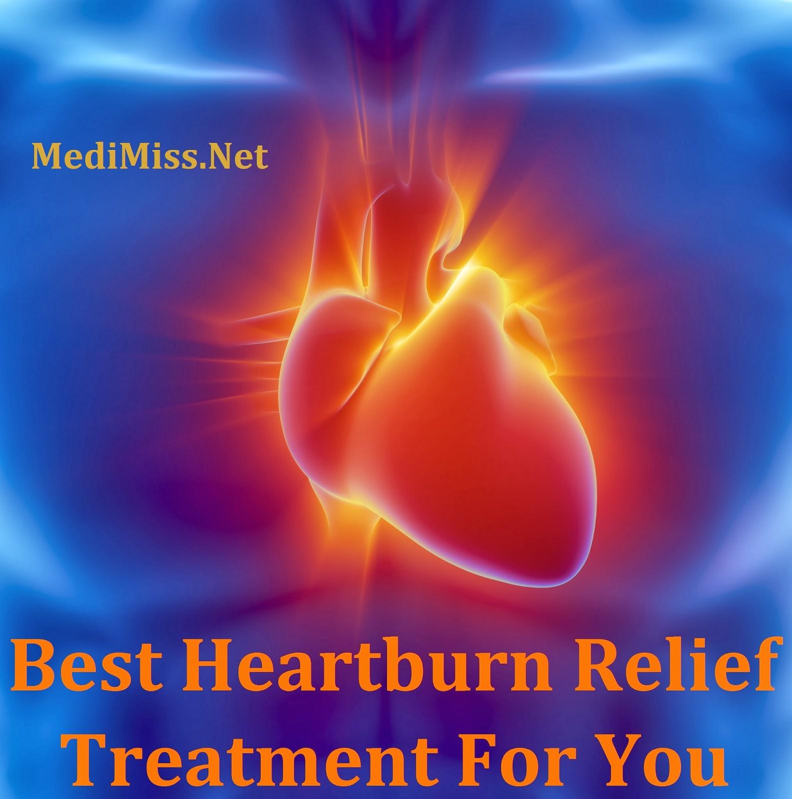 Best Heartburn Relief