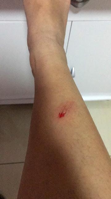 machucado recente na perna