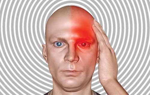 Sumber Penyebab Sakit Kepala