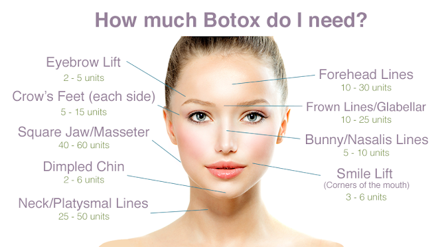 Botox Singapore Price