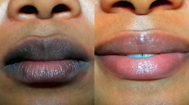 Penyebab Bibir Hitam Dan Cara Mengatasinya