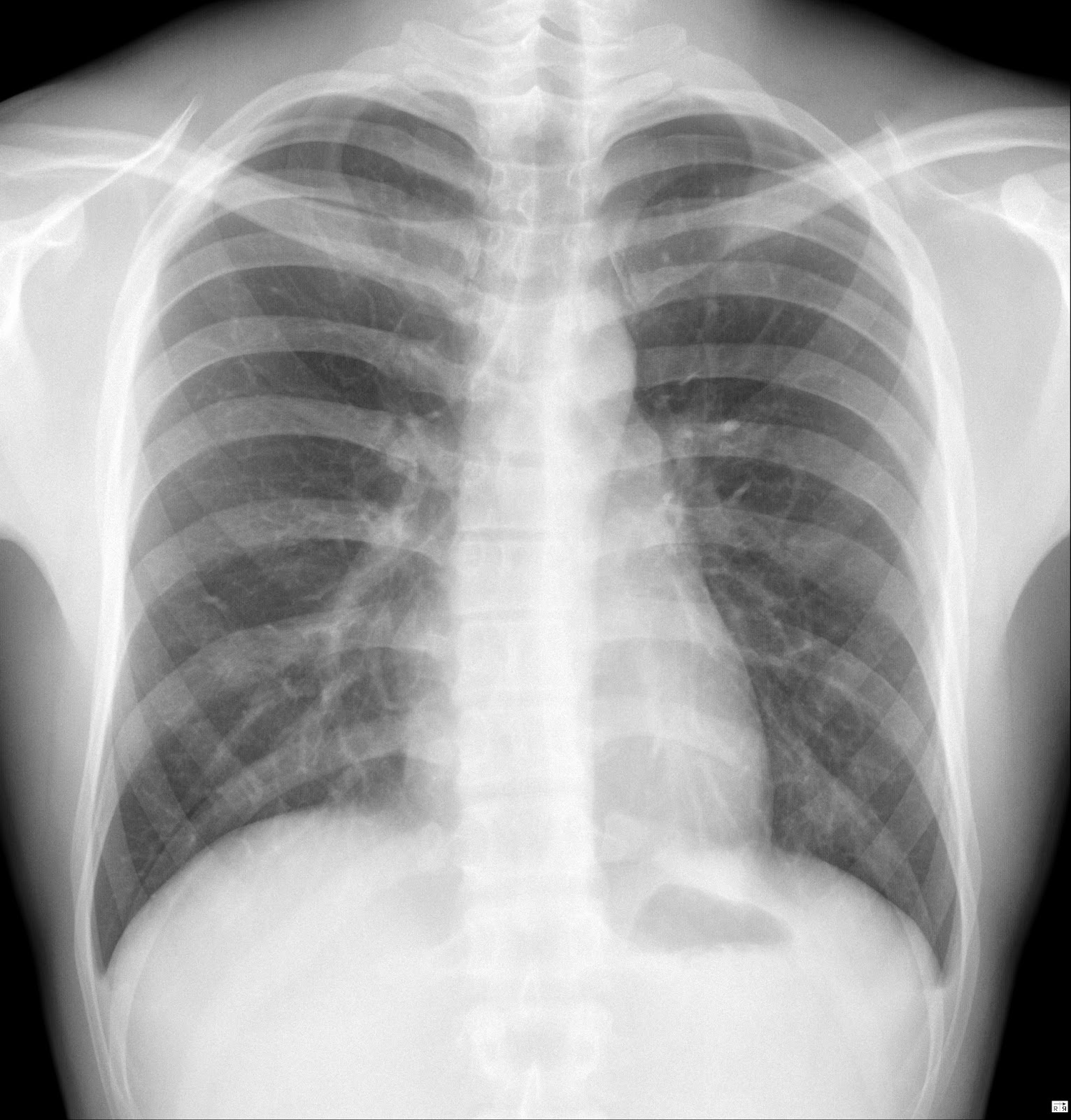 chest radiology About the american college of chest physicians the american college of chest physicians is the global leader in advancing best patient outcomes through innovative chest medicine education, clinical research, and team-based care.