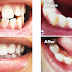 Natural teeth whitening with smile direct club reviews