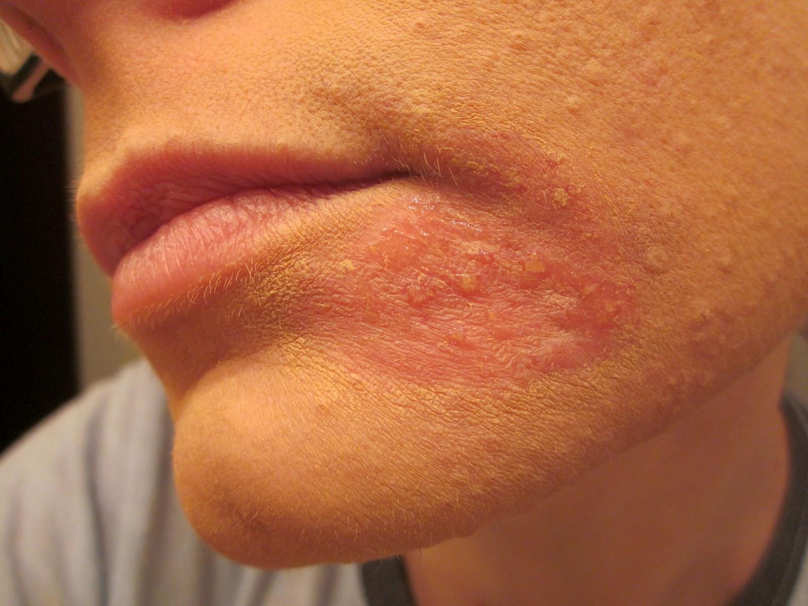 Skin Lupus Natural Treatment