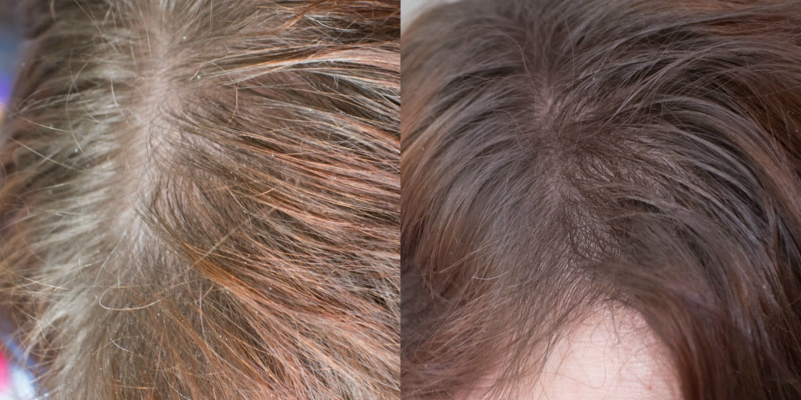 Toppik Hair Thickener The Life And Styles Of Klf
