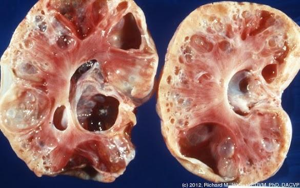 Tanpa Kita Sadari, Inilah Gejala Awal Penyakit Gagal Ginjal. Kenali Ciri-Cirinya Sebelum Terlambat