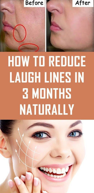 How to Reduce Laugh Lines in 3 Months Naturally