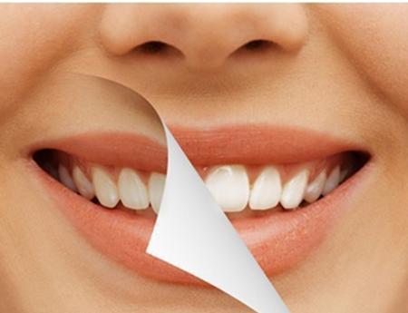 Cara Memutihkan Gigi Dengan Garam Kabar Plaza