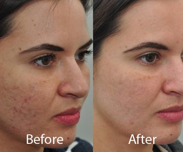 Acne Vulgaris Treatment And Causes
