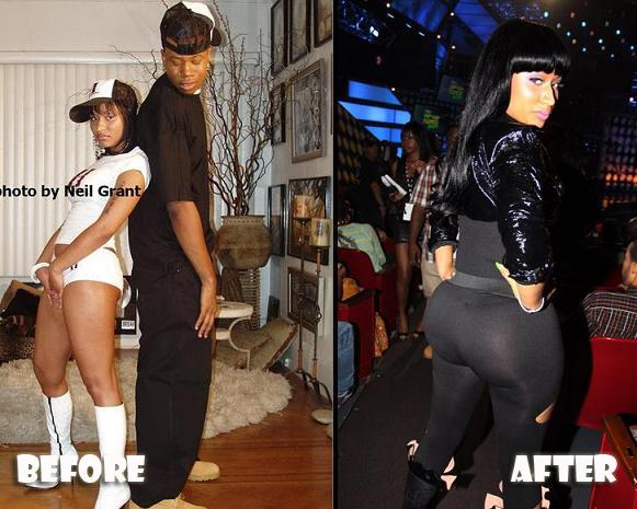 Plastic Surgery Nicki Minaj Plastic Surgery