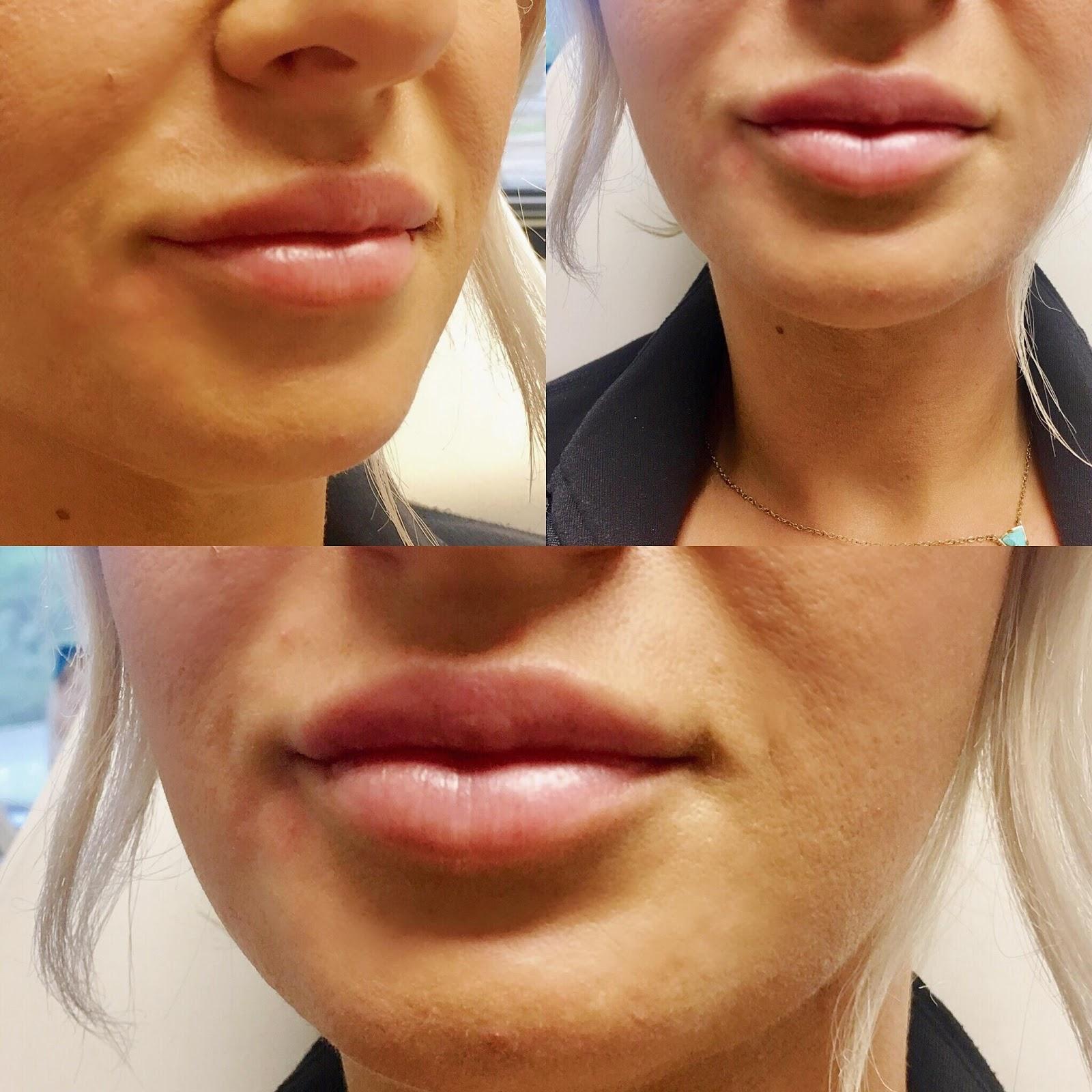 Sovay Reeder Best Lip Filler In Austin By Medical Injector Sovay Reeder