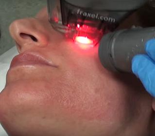 Sinar laser untuk pencegahan kanker